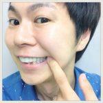 白くて強い歯を『保険適応』で安く手に入れる方法(CAD/CAM)