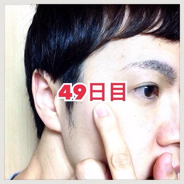 【体験49日目】シミ消しクリーム『ユークロマ(EUKROMA)』口コミ