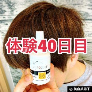 【体験40日目】ミノキシジル世界最高濃度[フォリックスFR16]育毛効果