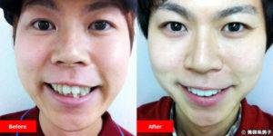 【出っ歯】印象が大きく変わるセラミック治療-保険適用外白い歯/東京